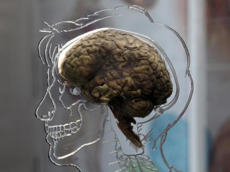 retirar o cérebro das pessoas para fora do corpo e congelá-los