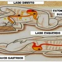 Porque dormir do seu lado esquerdo pode beneficiar sua saúde?