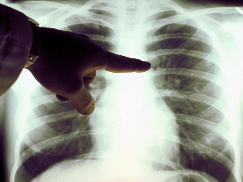 Potencialmente, os computadores pessoais poderiam ser usado para entender como se comportam células e para o tratamento de doenças como câncer do pulmão Getty