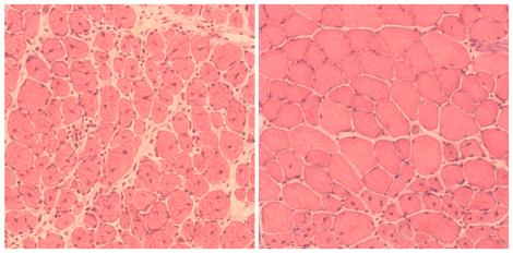 pele rejuvenescida vista em um microscópio