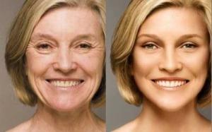 evitar-envelhecimento-pele